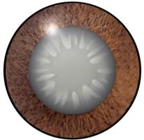 白内障の眼球水晶体が濁り光を通しにくくなります。
